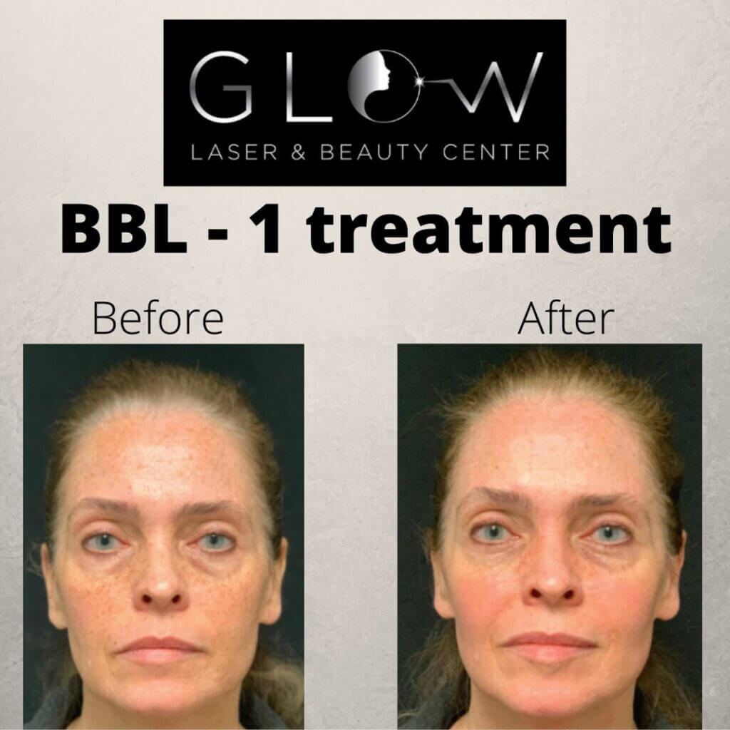 Forever Young BBL Treatment in Erie, PA - Glow Laser and Beauty Center